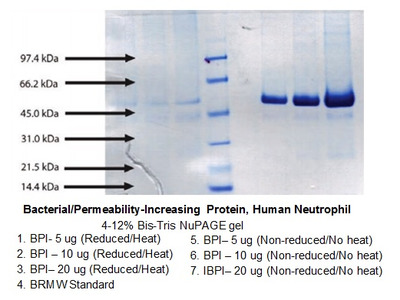 Bacterial/Permeability-Increasing Protein, Human Neutrophil (BPI, CAP57)