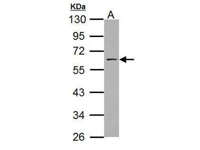 ABI1 Polyclonal Antibody