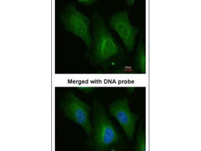 Dopamine beta Hydroxylase Polyclonal Antibody