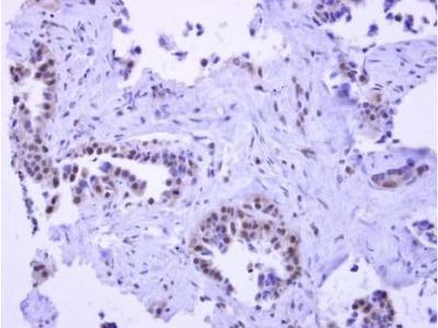 PYGO2 Polyclonal Antibody