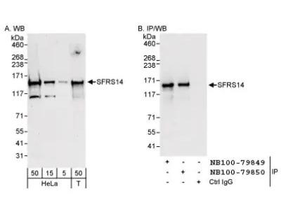 Rabbit Polyclonal SFRS14 Antibody