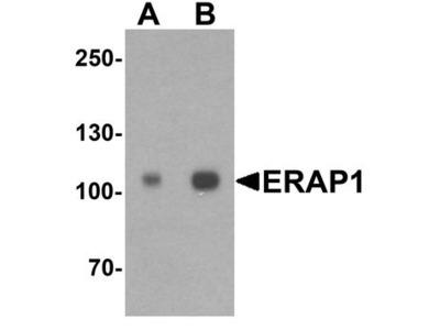 ARTS1 / ERAP1 Antibody