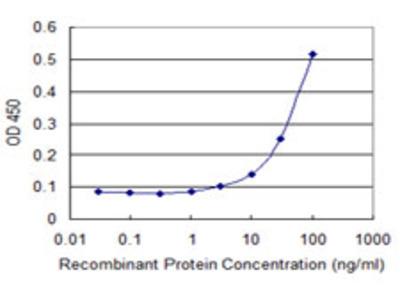 PCK2 / PEPCK Monoclonal Antibody