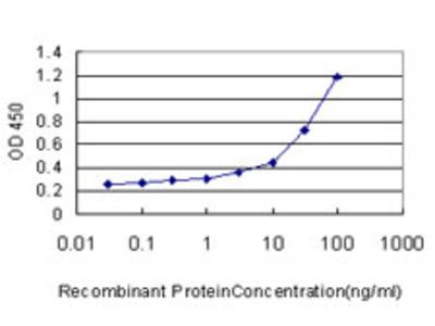 UROD Monoclonal Antibody