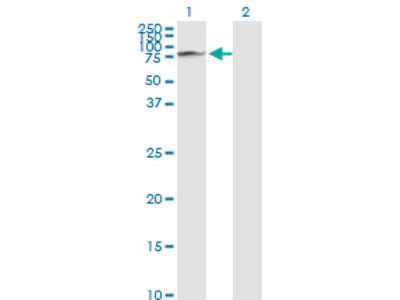 GLB1 / Beta-Galactosidase Monoclonal Antibody