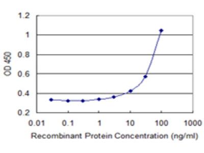 ATP8B1 / BRIC Monoclonal Antibody