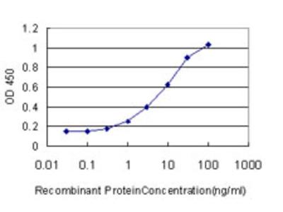 SOX4 Monoclonal Antibody