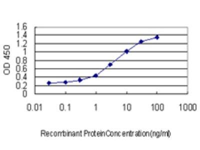 ALAS1 Monoclonal Antibody