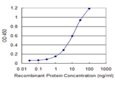 UQCRH Monoclonal Antibody