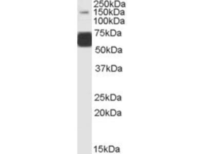 Goat Polyclonal GluR5 / GRIK1 Antibody