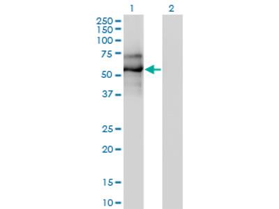 EBF / EBF1 Monoclonal Antibody