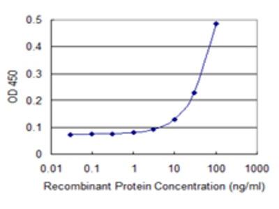 TTC4 Monoclonal Antibody