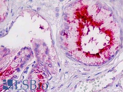 LP-PLA2 / PLA2G7 Antibody