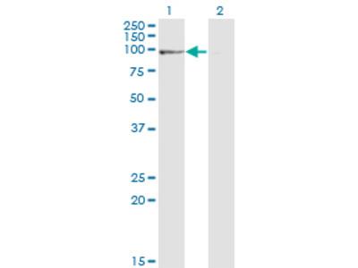 PPP1R10 / PNUTS Monoclonal Antibody
