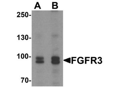 FGFR3 Antibody
