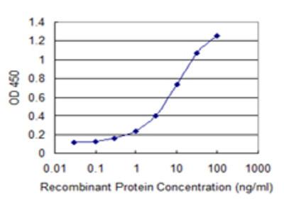 SULT2B1 / Sulfotransferase 2B1 Monoclonal Antibody