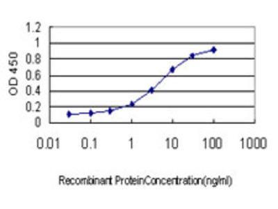 BDKRB2/Bradykinin B2 Receptor Monoclonal Antibody