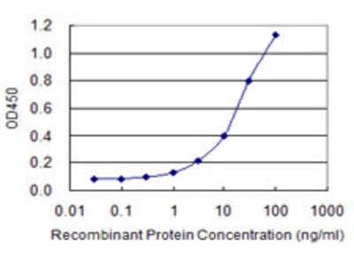 CTBS / CTB Monoclonal Antibody