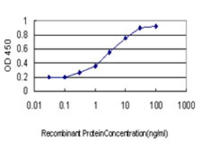 SERPINB3 Monoclonal Antibody