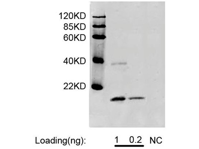 CSF3 / G-CSF Monoclonal Antibody
