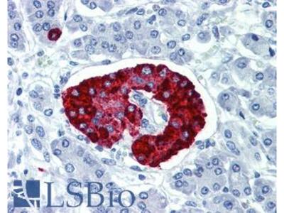 CPE / Carboxypeptidase E Polyclonal Antibody
