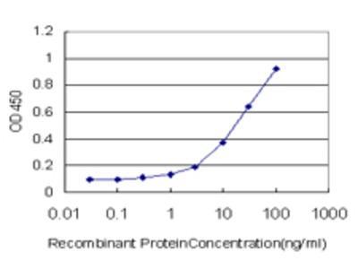 ADCY5 / Adenylate Cyclase 5 Monoclonal Antibody