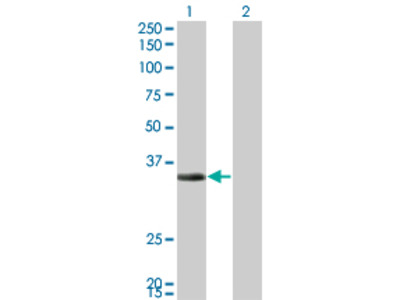 ECH1 Monoclonal Antibody