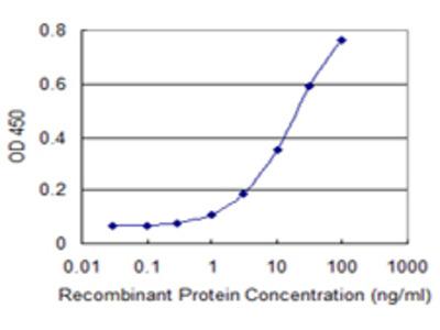 ALDH18A1 Monoclonal Antibody