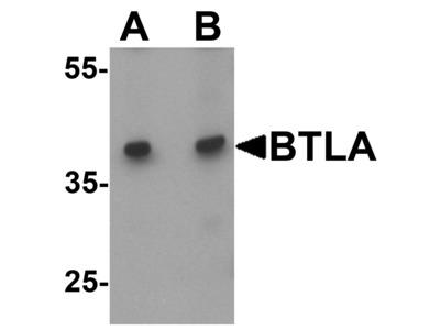 BTLA / CD272 Antibody