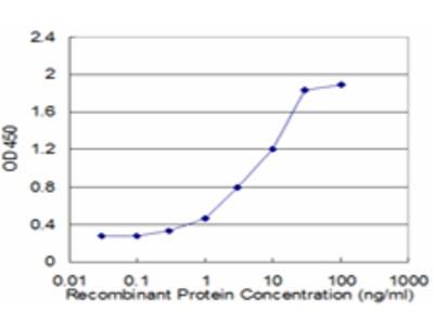 FABP1 / L-FABP Monoclonal Antibody