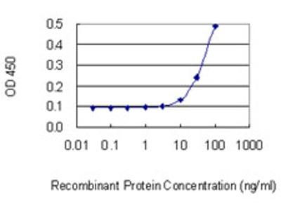 KRT6B / CK6B / Cytokeratin 6B Monoclonal Antibody