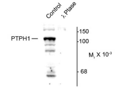 PTPH1 (PTPN3) pSer459 rabbit polyclonal antibody, Aff - Purified