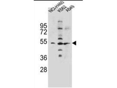 anti SLC36A1 / PAT1 (1-30)