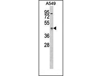 TMOD1 antibody