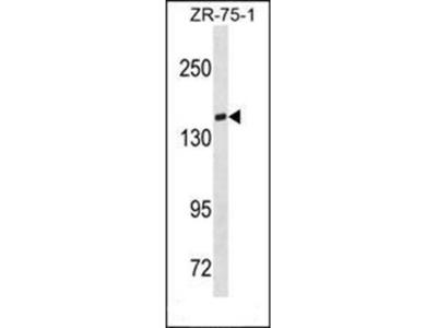 TIAM1 antibody