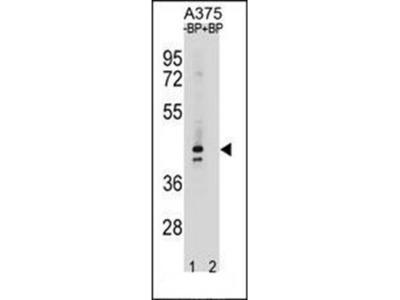 OR5AC2 antibody