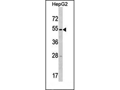 TMPRSS11E antibody