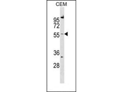 CALCRL antibody