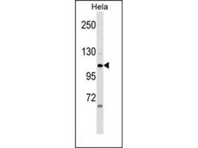 ZNF33A antibody