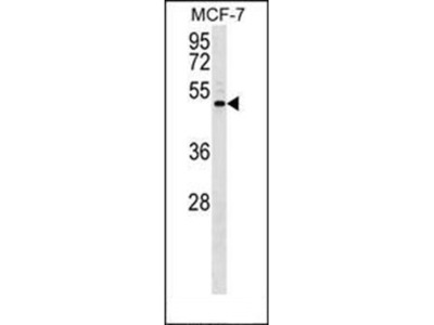 ENPP5 antibody