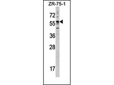 Cytokeratin 3 antibody