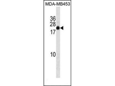 ZNF747 antibody