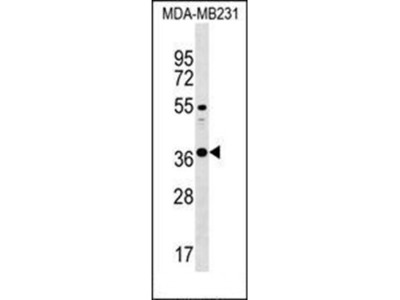 CTRB1 antibody