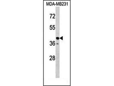 TAS2R31 antibody