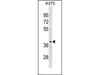 OR5AK2 antibody