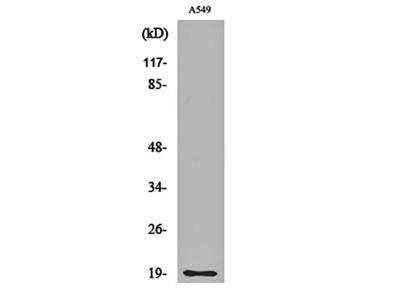 CD3 delta antibody