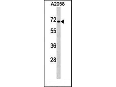 CPEB1 antibody