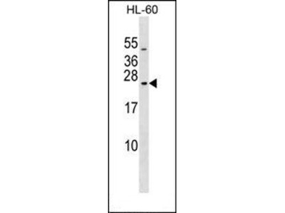 RAB20 antibody