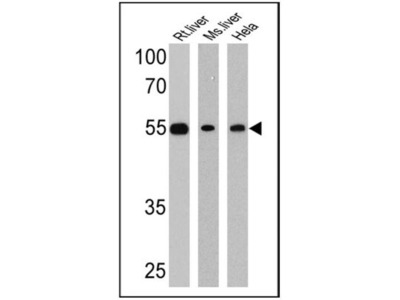 Rabbit Polyclonal LXR beta / NR1H2 Antibody