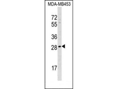 AIDA antibody